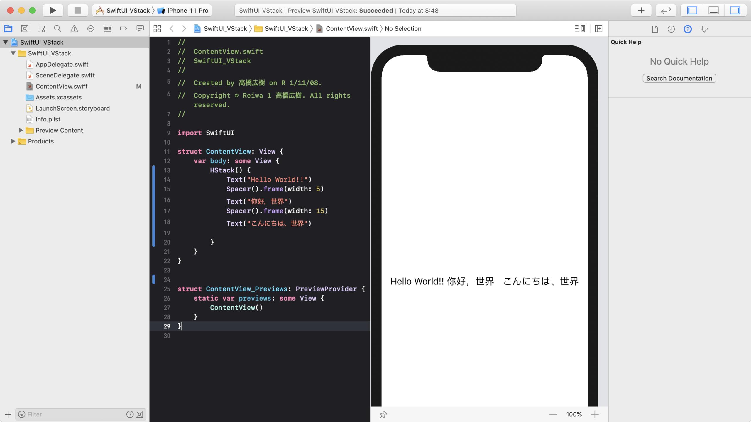 Spacer.frame() の使用例